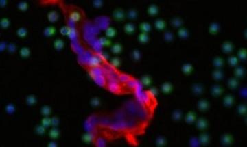 Учени откриха слабото място на раковите клетки